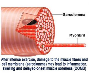 muscle-cell-DOMS
